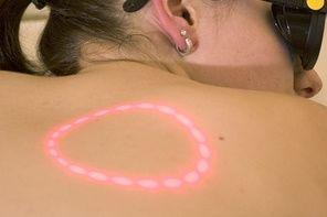 Hvordan å fjerne en tatovering med laser