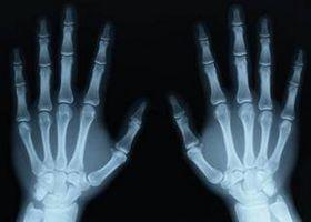 Fakta om Prikking Fingers