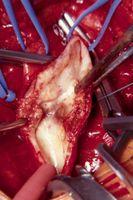 Slik fjerner plakk i arteriene