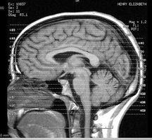Hvordan øke hjernens funksjon i 3 trinn