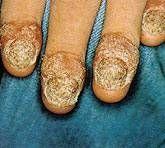 Nail psoriasis behandling
