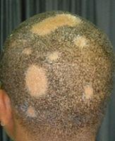 Hva er årsaken til Flekkvis skallethet?