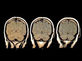 EEG Spiking & Epilepsi