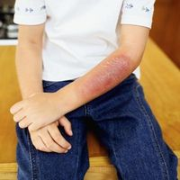 Hvordan beregne Pediatric Burn-området