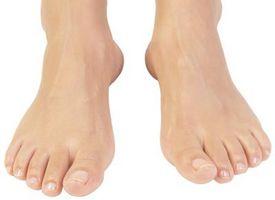 Hvordan Plasser en Foot neuroma Pad