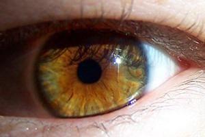 Ulike øyesykdommer