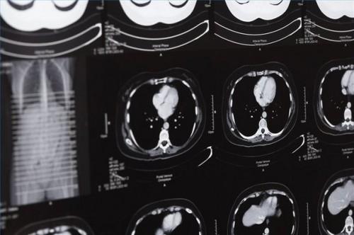 Hvordan Vurdere Post-Hjernerystelse Brain Damage