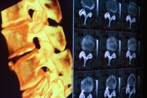 Hvordan diagnostisere jeg en T12 ryggmargsskader?