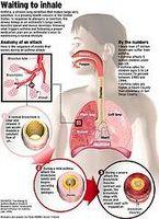 Barndom Astma Informasjon