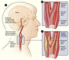 Symptomer på Blokkert Neck Arteriene