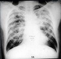 Hva er lungefibrose?
