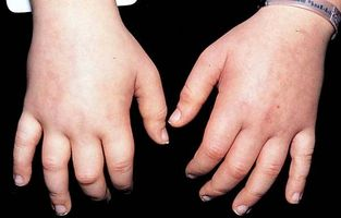 Årsaker til væskeansamlinger i kroppen