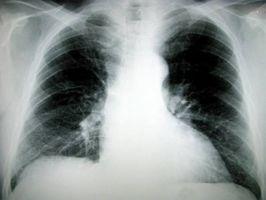 Behandlinger for ekstrapulmonal tuberkulose?