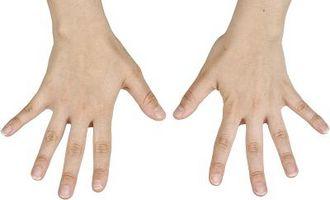 Tegn og symptomer på dårlig sirkulasjon til hender og føtter