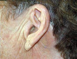 Hvordan bli kvitt ørevoks at Home