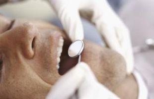 Hvordan oppdage tannråte