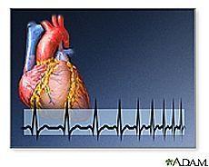 Hvordan finne ut om du har et hjerteinfarkt