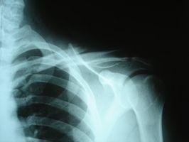 Hvordan Heal a Broken Clavicle Bone