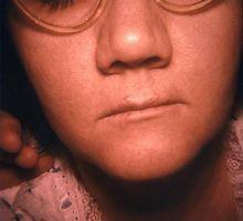 Herpes Simplex behandling hos barn