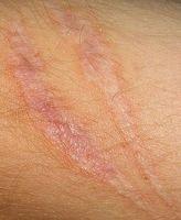 Hvordan lage Scars Fade