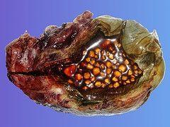Om galleblæresykdom