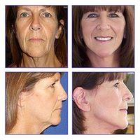Hva er noen Organiske behandlinger for sagging hud & Misfarging?