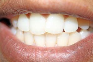 Om Wear & Korrosjon på tannimplantater