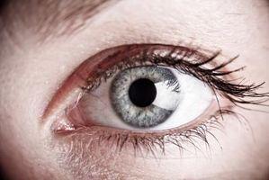 Hjem rette for svarte ringer under øynene