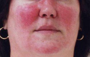 Hva er årsakene til Red Skin?