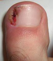 Hvordan behandle inngrodde tånegler med hjem rettsmidler