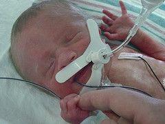 Primær pulmonal hypertensjon hos nyfødte