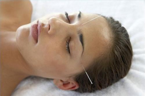 Hvordan å lindre magesmerter Gjennom Akupunktur