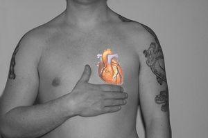 Hvilken rolle spiller Kolesterol Spill i koronar hjertesykdom?