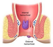 Hjem tiltak for lindring fra hemorroider