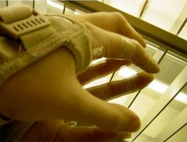 Homeopati for Carpal Tunnel Syndrome