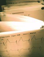 EKG og Hyperkalemi